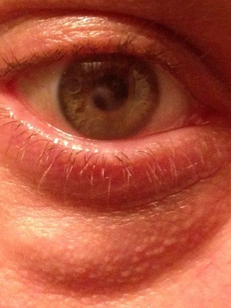 Болезни глаз и ушей.. болезни крупного рогатого скота