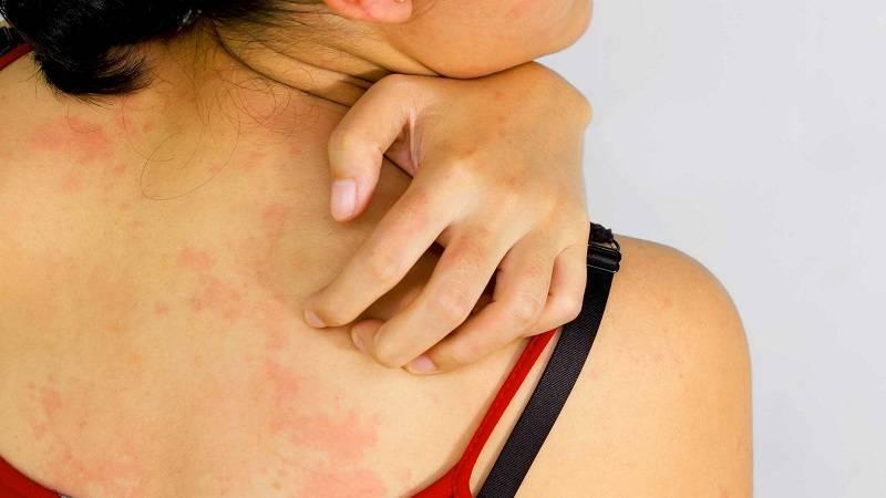 Аллергическая непереносимость авокадо - причины, проявление и лечение