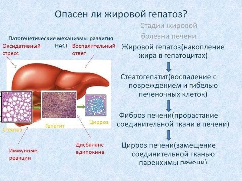 Очаги жирового гепатоза печени: что это такое и чем лечить?