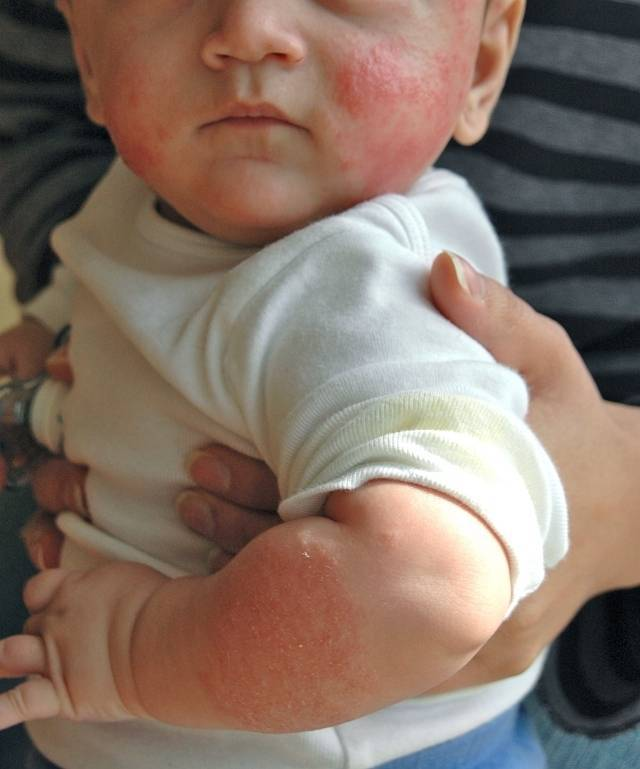 Аллергия на тыкву: причины, лечение
