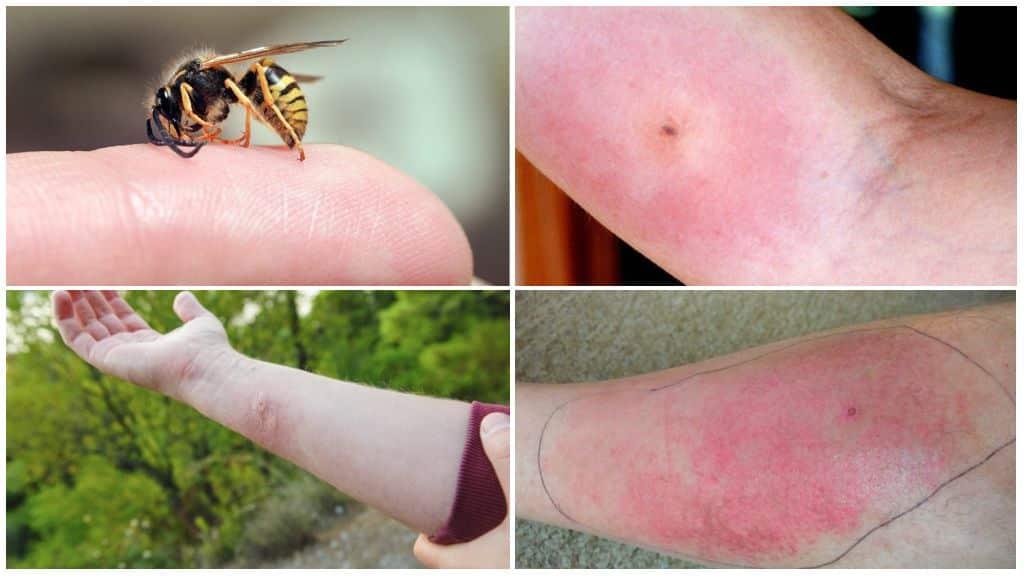 Средства от укуса пчелы