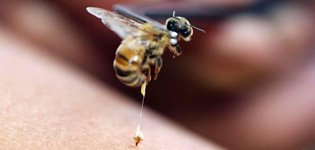 Укус пчелы: польза или вред, симптомы, лечение, народные средства