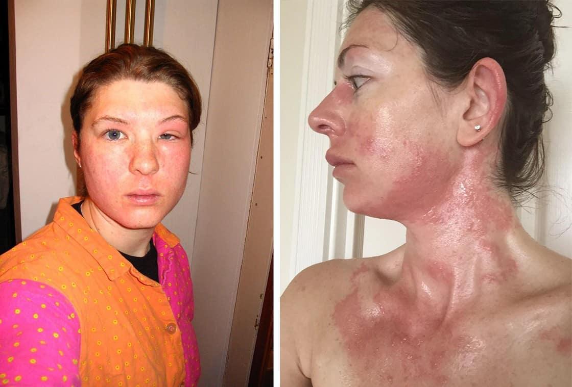 Авокадо-аллерген или нет, может ли быть перекрестная аллергия?