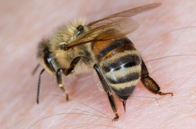 Что делать, если укусила пчела?