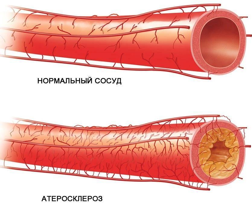 Сок лимонника повышает давление или понижает артериальное давление
