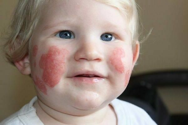 Аллергия на дыню: симптомы