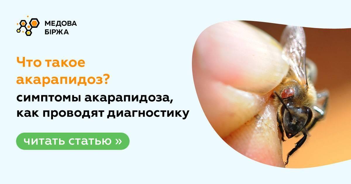 Акариазы – симптомы, лечение, формы, стадии, диагностика