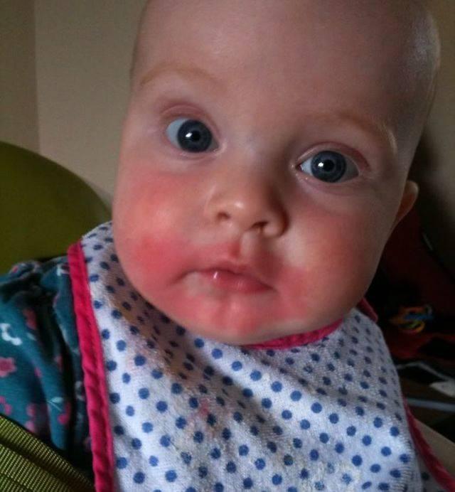 Может ли быть аллергия на дыню у взрослого