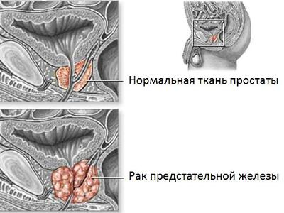 Лечение онкологии прополисом, способы применения при раке