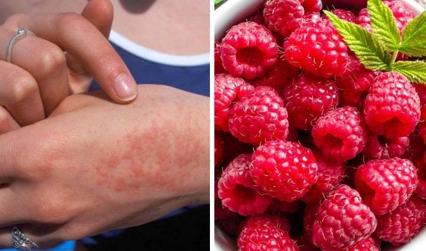 Аллергия на черную смородину отзывы