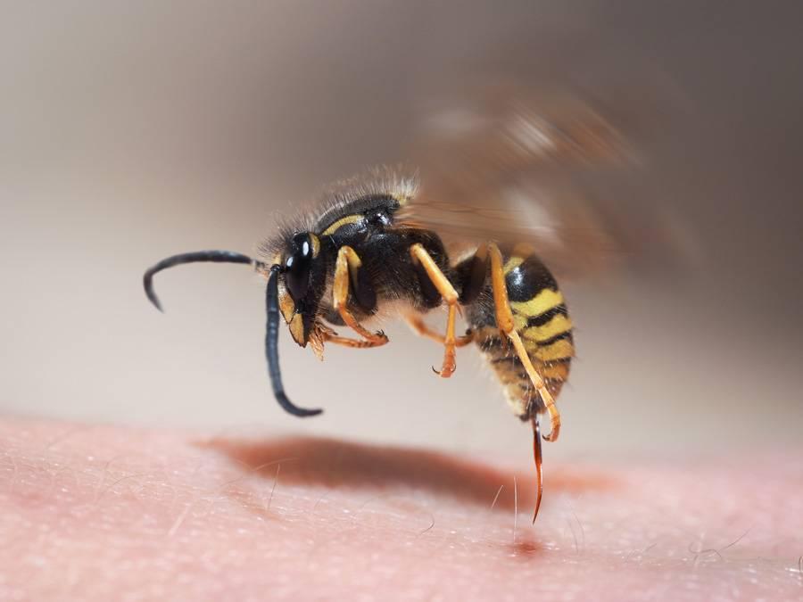 Аллергическая реакция на укус пчелы, что делать