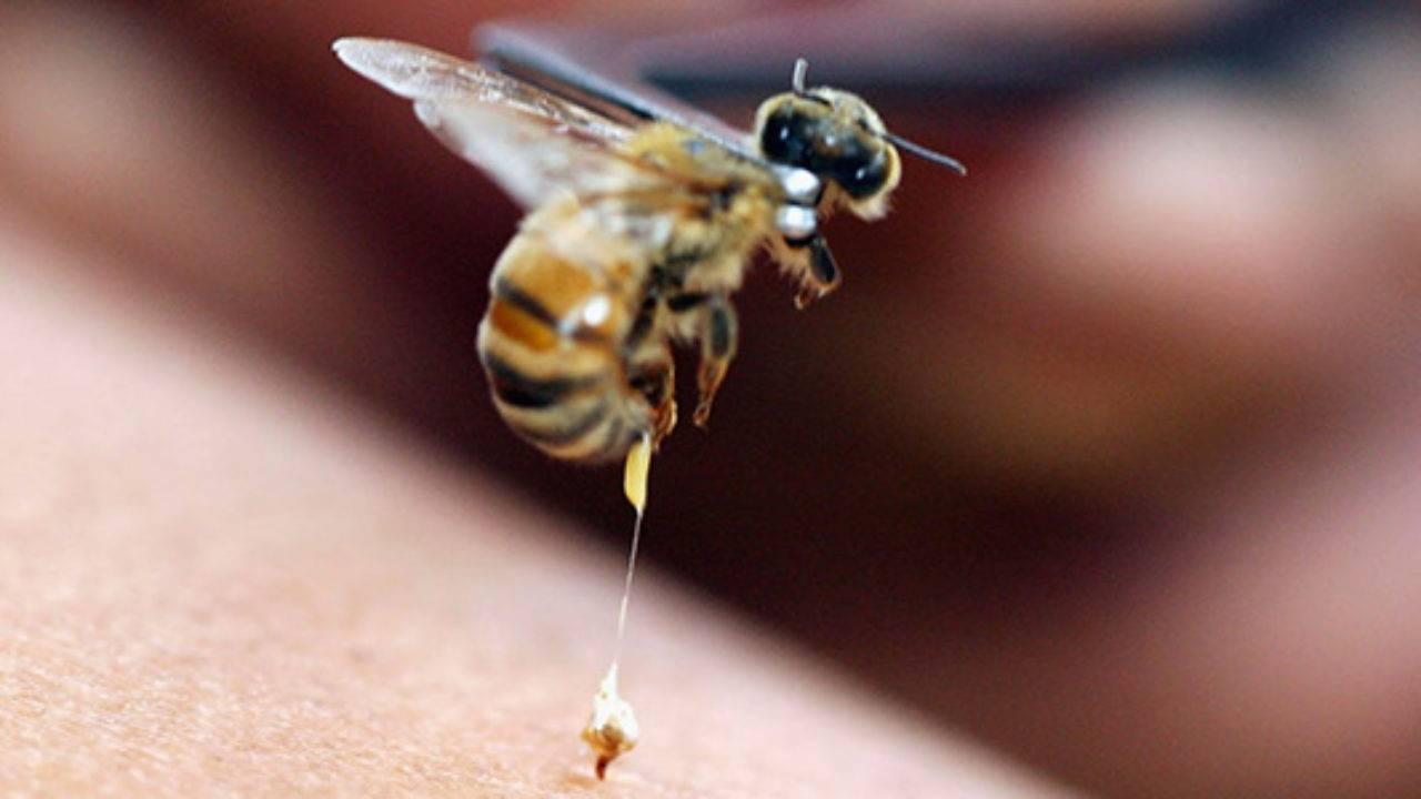 Ребенка укусила пчела что делать