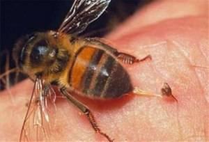 Апитерапия или лечение пчёлами. описание, схемы ужаливаний. отзывы и рекомендации