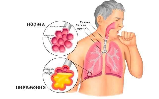 Лечение прополисом желудка, язвы и изжоги