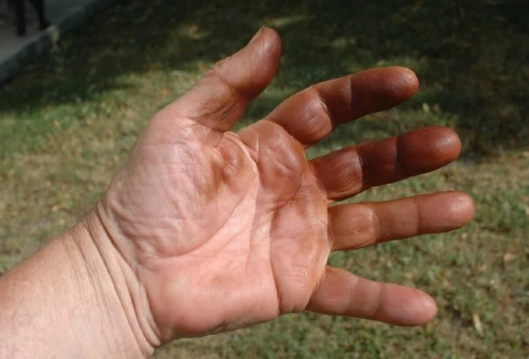Чем быстро отмыть руки от орехов?