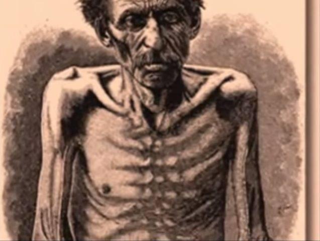 Туберкулез у коров: симптомы, диагностика, опасен ли для человека?