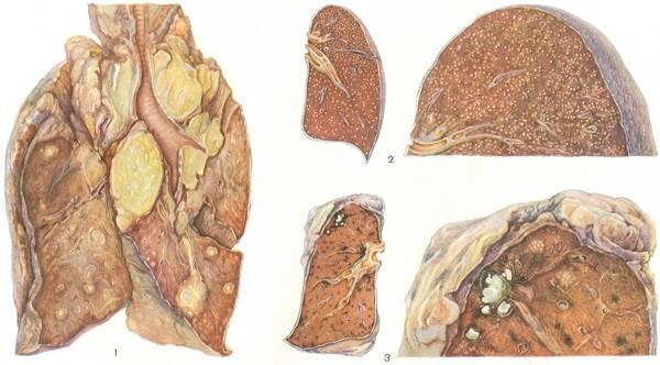 Туберкулез крс