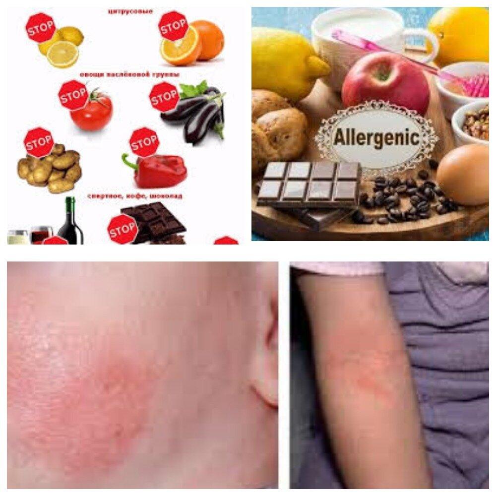 Аллергия на дыню кашель