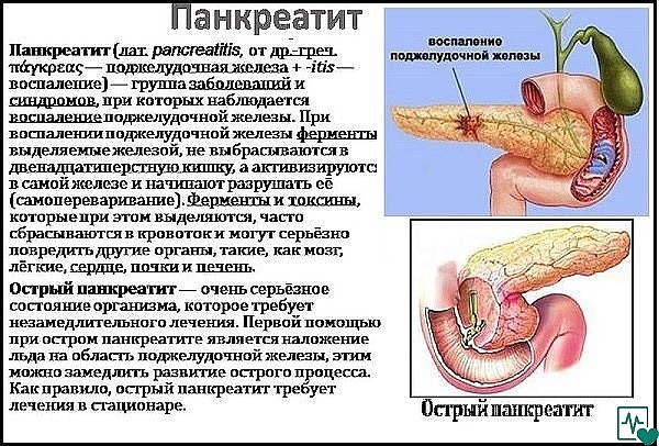Прополис при панкреатите: лечение и рецепты с молоком