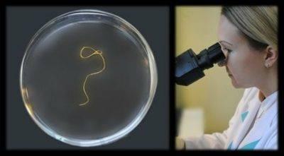 Когда опрыскивать черешню от червей?