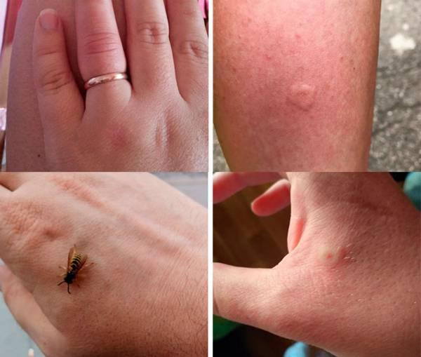 Опухоль, отек и аллергия после укуса пчелы, что делать?