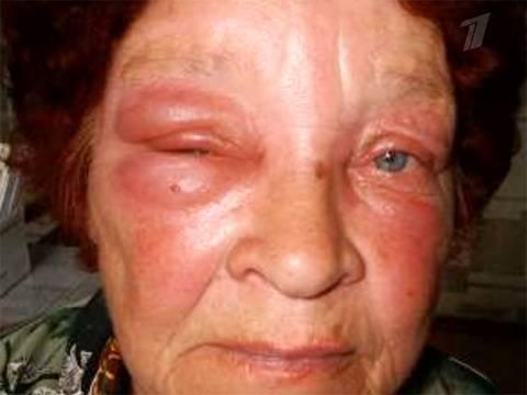 Лечение укусов насекомых мазями