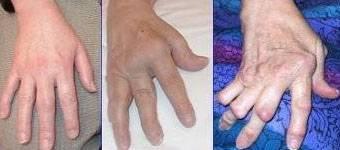 Гнойный артрит путового сустава крс