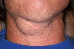 Причины развития беломышечной болезни у телят, основные симптомы и методики лечения