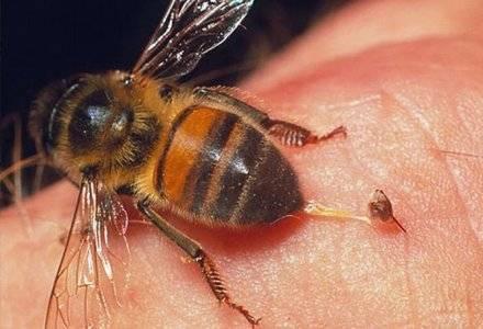 Укусила пчела - что делать? первая помощь при укусе пчелы