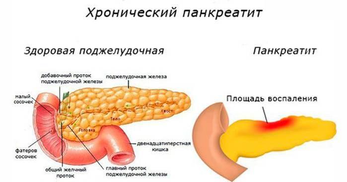 Прополис при панкреатите лечение поджелудочной железы