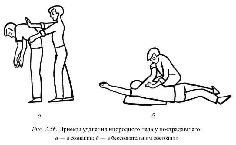 Механическая асфиксия : лекция